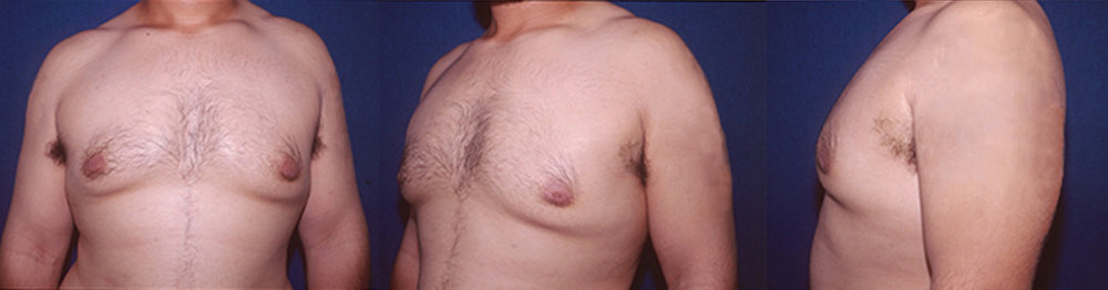 2-Gynecomastia-Correction-Male-Breast-Reduction-After.jpg
