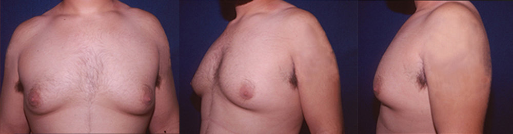 2-Gynecomastia-Correction-Male-Breast-Reduction-Before.jpg
