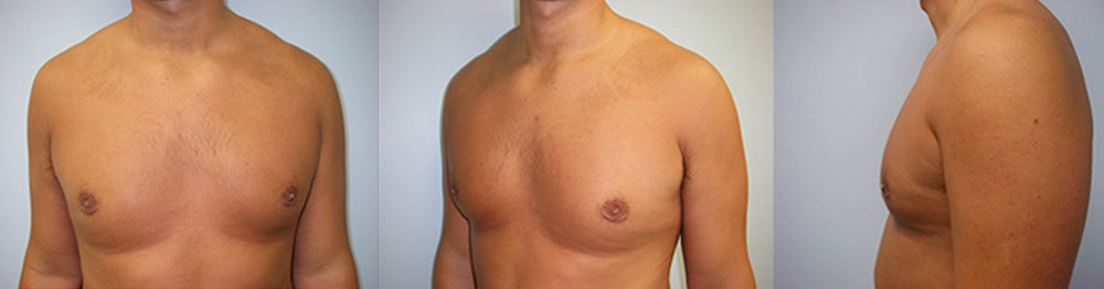 3-Gynecomastia-Correction-Male-Breast-Reduction-After.jpg