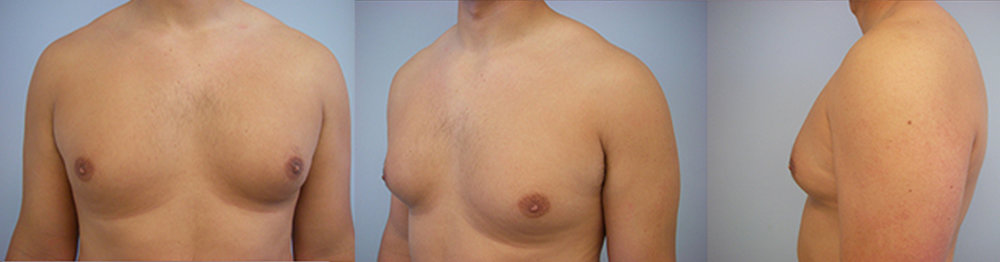 3-Gynecomastia-Correction-Male-Breast-Reduction-Before.jpg