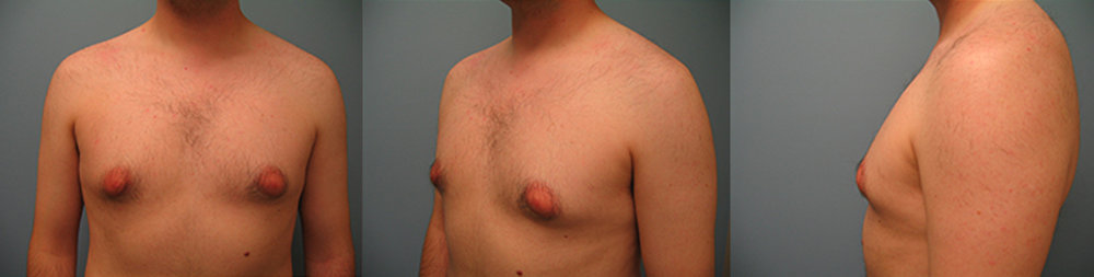 4-Gynecomastia-Correction-Male-Breast-Reduction-Before.jpg