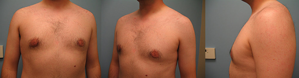4-Gynecomastia-Correction-Male-Breast-Reduction-After.jpg