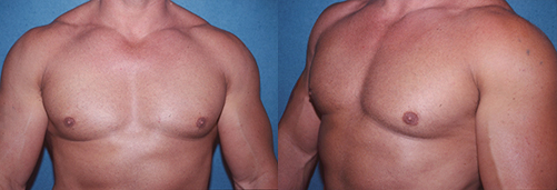 5-Gynecomastia-Correction-Male-Breast-Reduction-After.jpg
