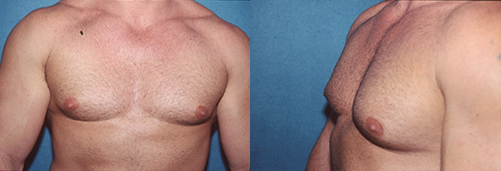 5-Gynecomastia-Correction-Male-Breast-Reduction-Before.jpg