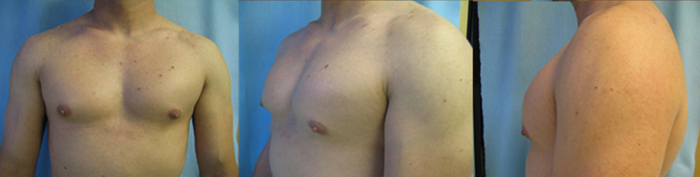 6-Gynecomastia-Correction-Male-Breast-Reduction-Before.jpg