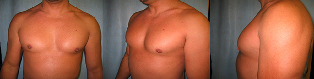 6-Gynecomastia-Correction-Male-Breast-Reduction-After.jpg