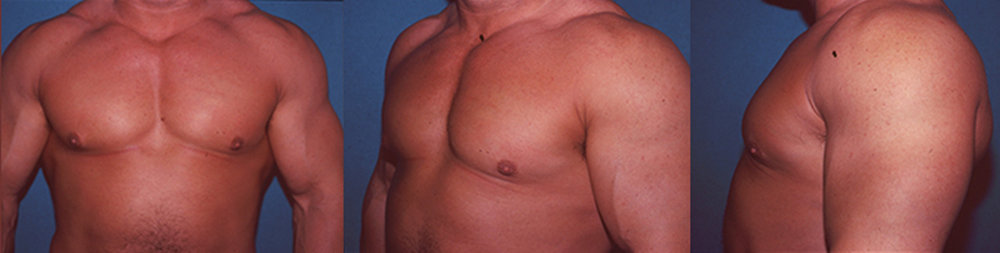 7-Gynecomastia-Correction-Male-Breast-Reduction-After.jpg
