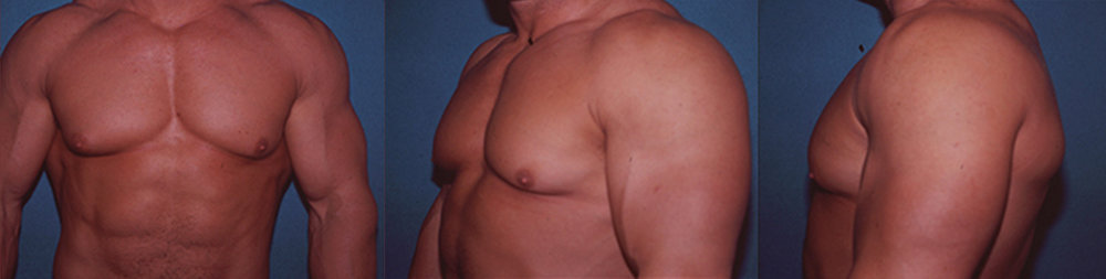 7-Gynecomastia-Correction-Male-Breast-Reduction-Before.jpg
