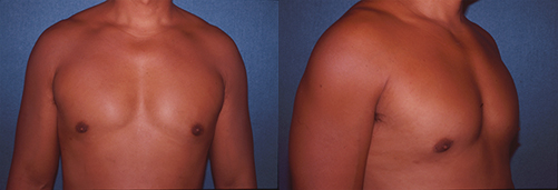 8-Gynecomastia-Correction-Male-Breast-Reduction-After.jpg