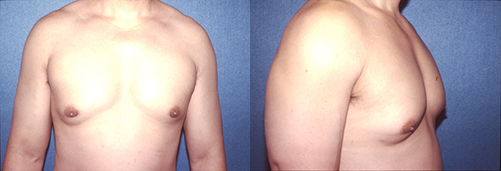 8-Gynecomastia-Correction-Male-Breast-Reduction-Before.jpg
