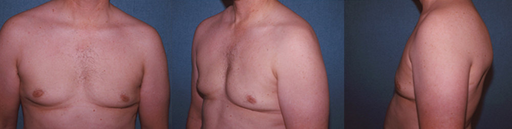 9-Gynecomastia-Correction-Male-Breast-Reduction-After.jpg