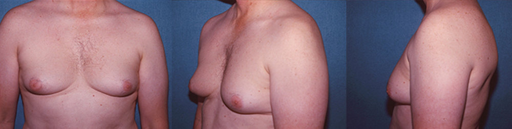 9-Gynecomastia-Correction-Male-Breast-Reduction-Before.jpg