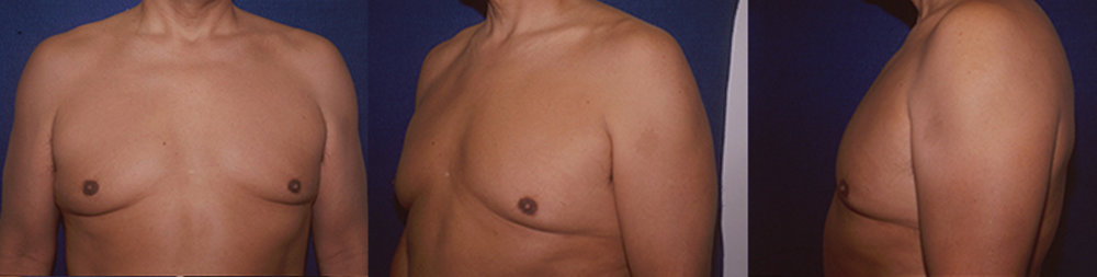 10-Gynecomastia-Correction-Male-Breast-Reduction-After.jpg