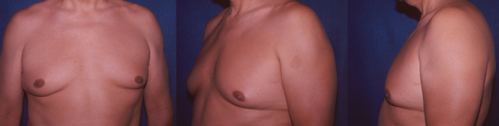10-Gynecomastia-Correction-Male-Breast-Reduction-Before.jpg