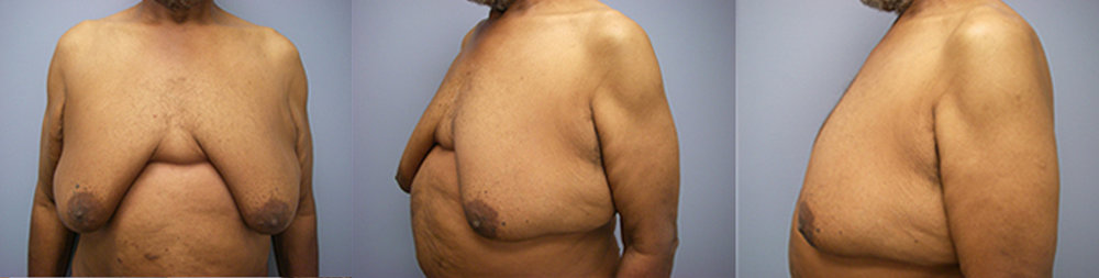 11-Gynecomastia-Correction-Male-Breast-Reduction-Before.jpg