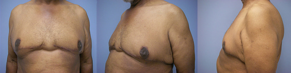 11-Gynecomastia-Correction-Male-Breast-Reduction-After.jpg