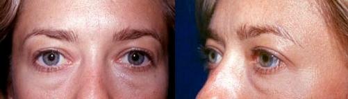 1-Eyelid-Lift-Before.jpg