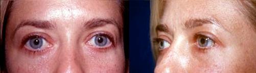 1-Eyelid-Lift-After.jpg