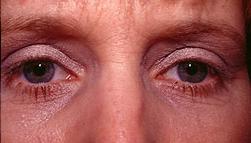 2-Eyelid-Lift-After.jpg