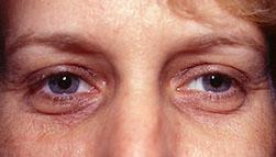 2-Eyelid-Lift-Before.jpg