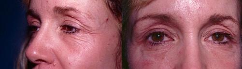 3-Eyelid-Lift-Before.jpg