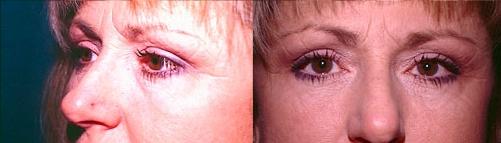 4-Eyelid-Lift-After.jpg