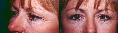 4-Eyelid-Lift-BEfore.jpg