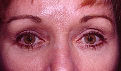 5-Eyelid-Lift-After.jpg