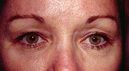 5-Eyelid-Lift-Before.jpg