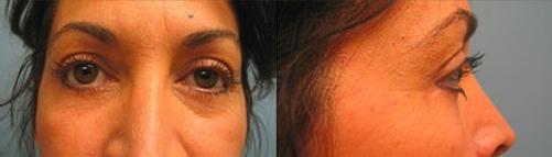 6-Eyelid-Lift-After.jpg