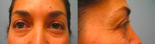 6-Eyelid-Lift-Before.jpg