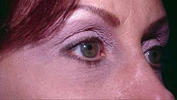 7-Eyelid-Lift-After.jpg