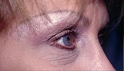 7-Eyelid-Lift-Before.jpg