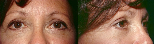 8-Eyelid-Lift-After.jpg