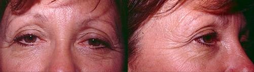 8-Eyelid-Lift-Before.jpg