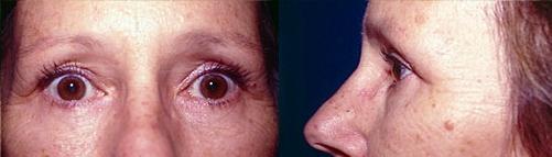 9-Eyelid-Lift-After.jpg
