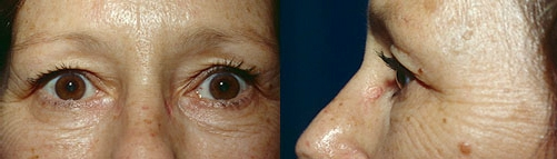 9-Eyelid-Lift-Before.jpg