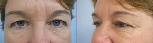 10-Eyelid-Lift-Before.jpg