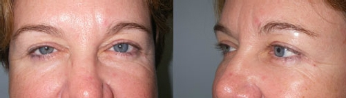 10-Eyelid-Lift-After.jpg
