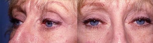 11-Eyelid-Lift-After.jpg