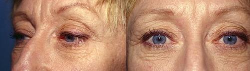 11-Eyelid-Lift-Before.jpg