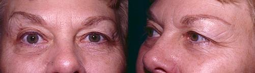 12-Eyelid-Lift-Before.jpg