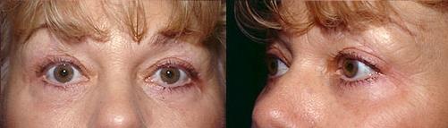 12-Eyelid-Lift-After.jpg