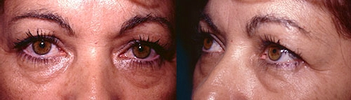 13-Eyelid-Lift-Before.jpg
