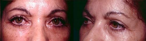 13-Eyelid-Lift-After.jpg