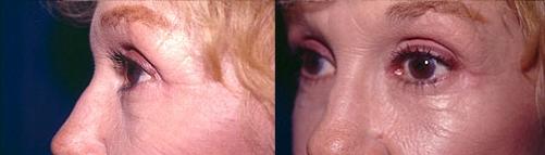 14-Eyelid-Lift-After.jpg