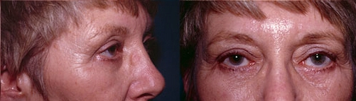 15-Eyelid-Lift-After.jpg