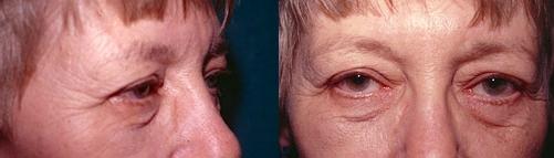 15-Eyelid-Lift-Before.jpg