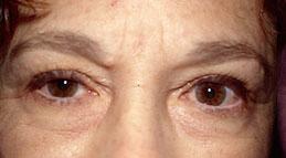16-Eyelid-Lift-Before.jpg