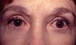 16-Eyelid-Lift-After.jpg